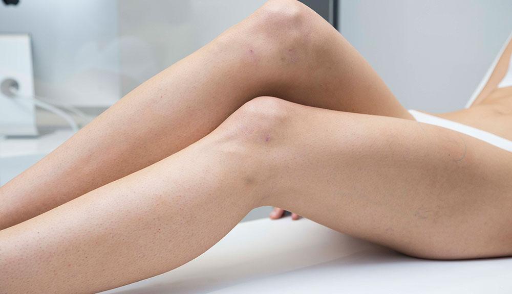 Dolor en la pierna derecha durante los períodos