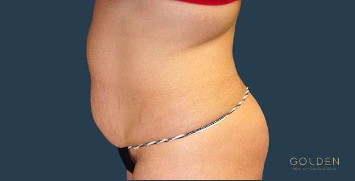 Antes---Slider-comparativos_abdominoplastia