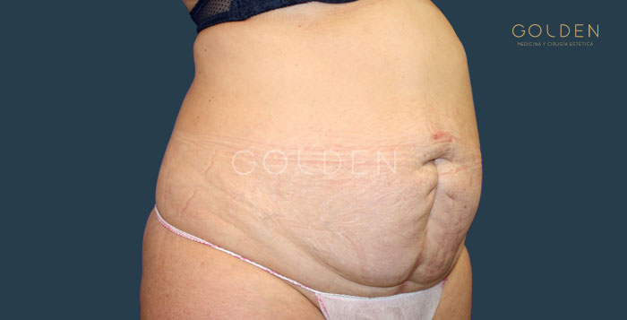 Before-abdominoplastia3