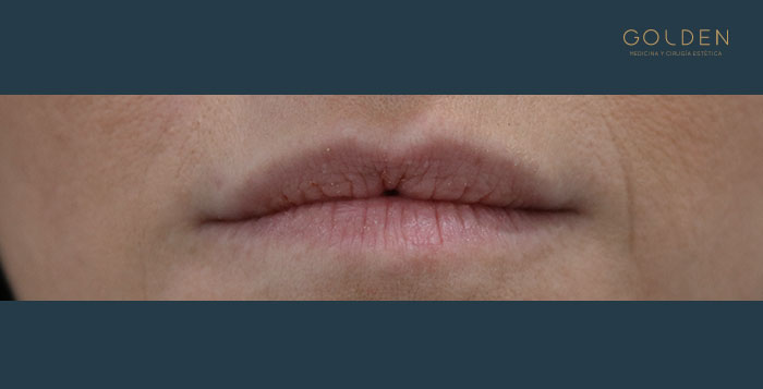 Before-Labios