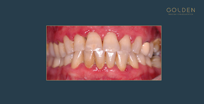 Before-periodoncia