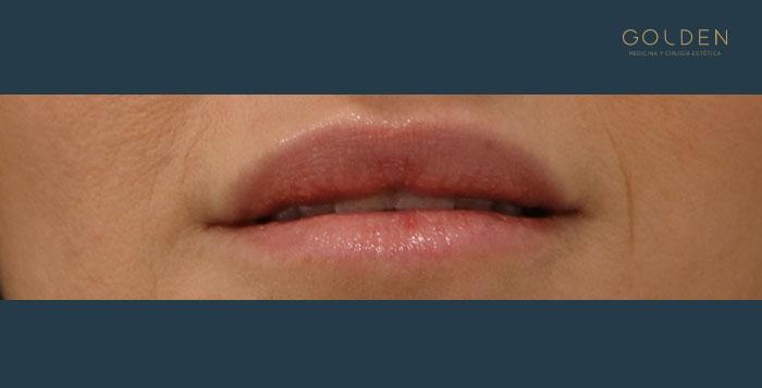 After-Labios