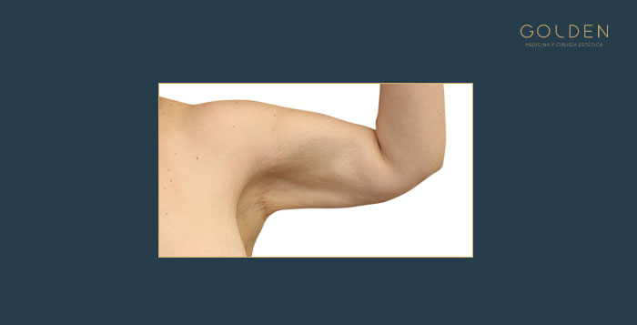 lifting-brazos_despues