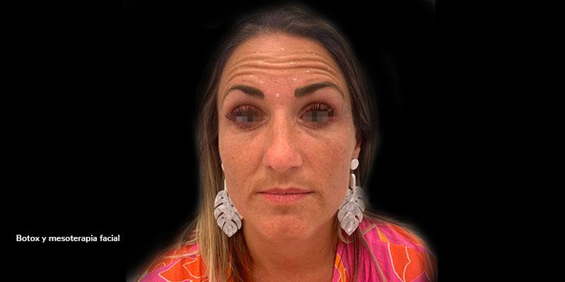 800-400-ANTES-mesoterapia-facial-caso1