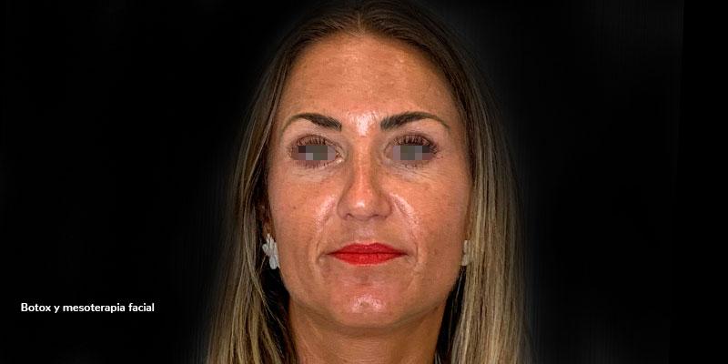 800-400-DESPUES-mesoterapia-facial-caso1