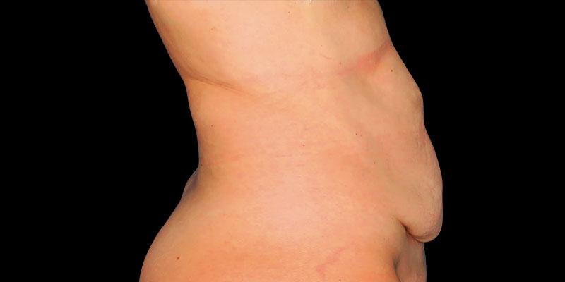 800-400ANTES-abdominoplastia-Golden-caso3