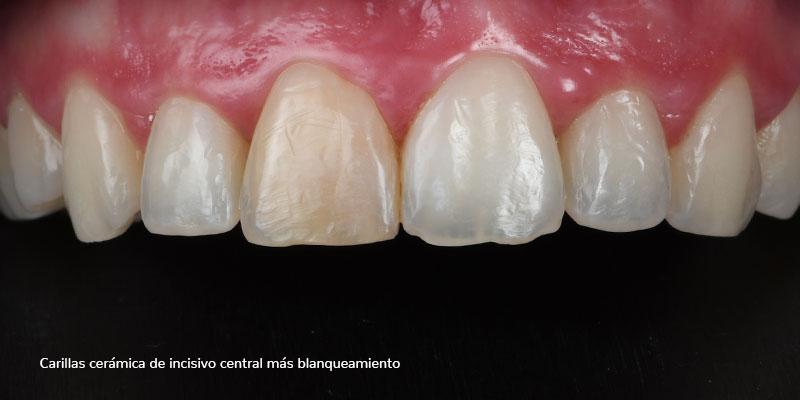 800-400ANTES-carillas-ceramicas502