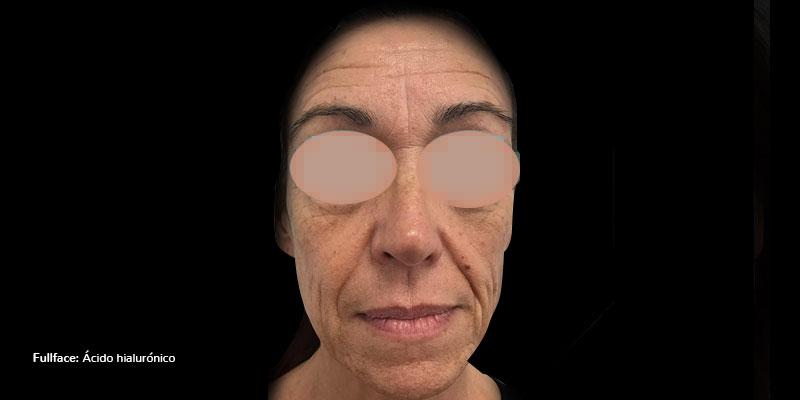 800-400ANTES-rellenos-Faciales-ÁcidoHialurónicoFullFace