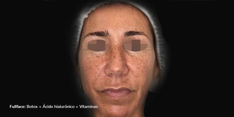 800-400ANTES-rellenosFaciales-rellenos-faciales-botox+AH+vitaminas-pomulos-caso2