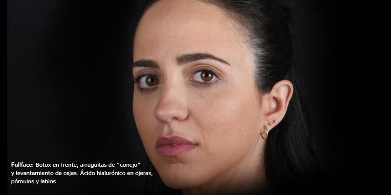 800-400Antes-FullFaceBeatriz-Botox+AH