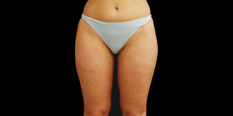 800-400DESPUES-Liposucciónylipoescultura-Golden-caso1