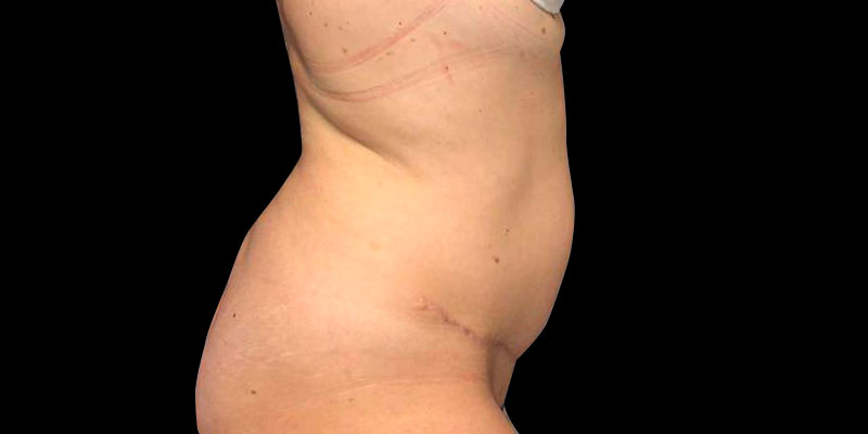 800-400DESPUES-abdominoplastia-Golden-caso1