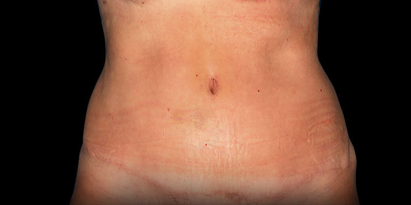 800-400DESPUES-abdominoplastia-Golden-caso2