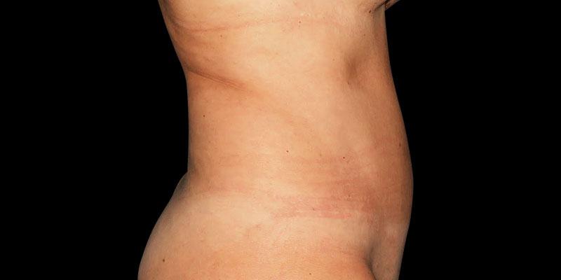 800-400DESPUES-abdominoplastia-Golden-caso3
