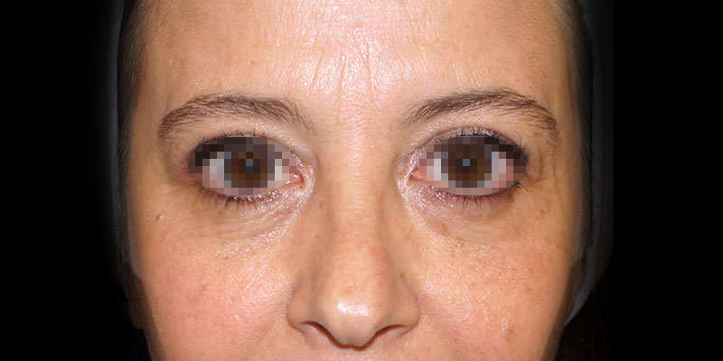800-400DESPUES-blefaroplastia-Golden-caso2