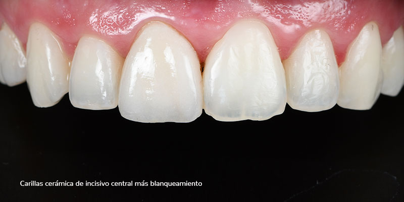800-400DESPUES-carillas-ceramicas502