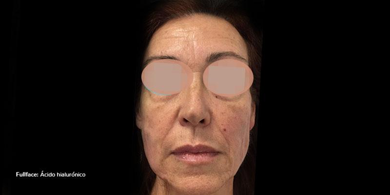 800-400DESPUES-rellenos-Faciales-ÁcidoHialurónicoFullFace