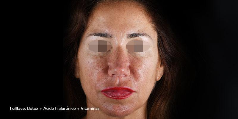 800-400DESPUES-rellenosFaciales-rellenos-faciales-botox+AH+vitaminas-pomulos-caso2