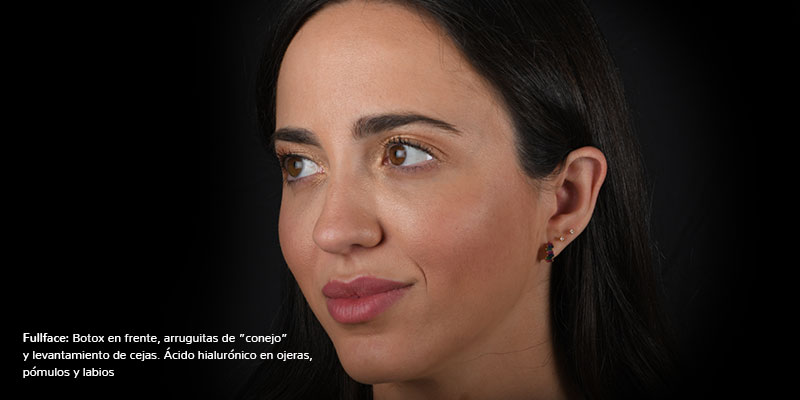 800-400Despues-FullFaceBeatriz-Botox+AH