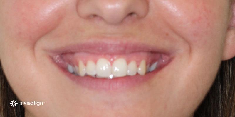 800-400antes-ortodoncia-invisalign