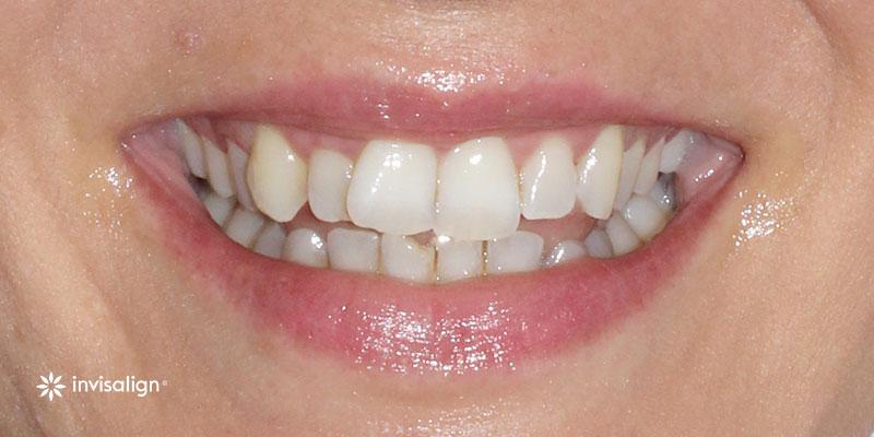800-400antes-ortodoncia-invisalign40
