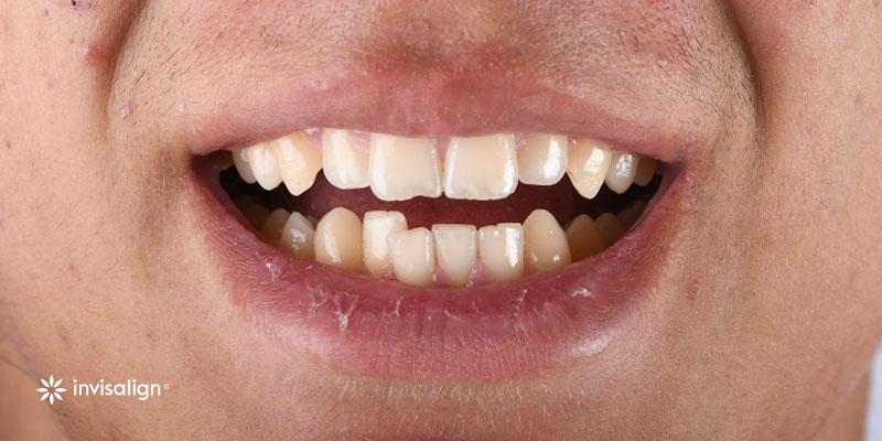 800-400antes-ortodoncia-invistalign271