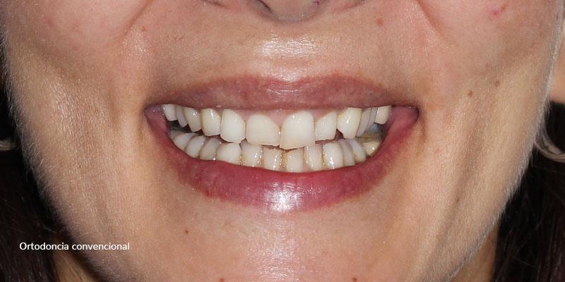 800-400antes-ortodonciaConvencional-91
