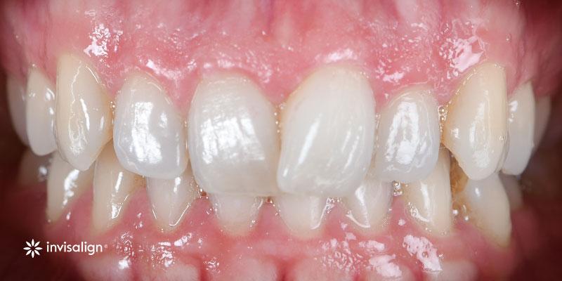 800-400antes-ortodonciaInvisalign-202