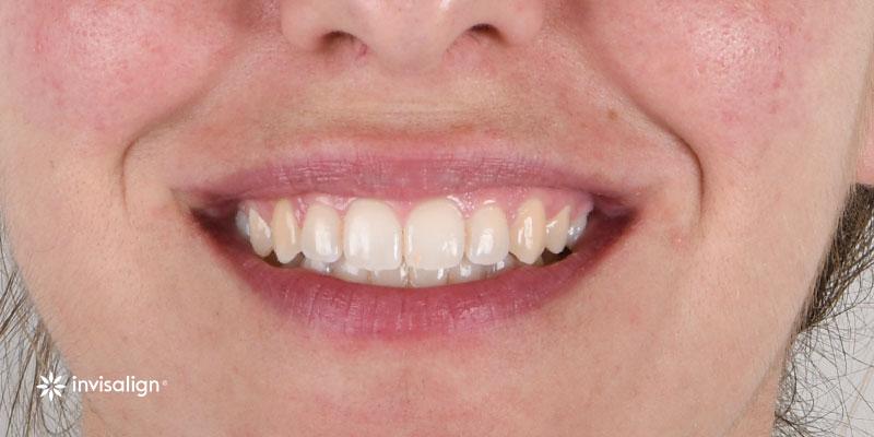 800-400despues-ortodoncia-invisalign