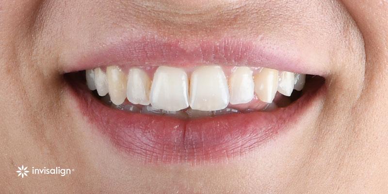 800-400despues-ortodoncia-invisalign40