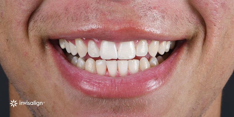 800-400despues-ortodoncia-invistalign271