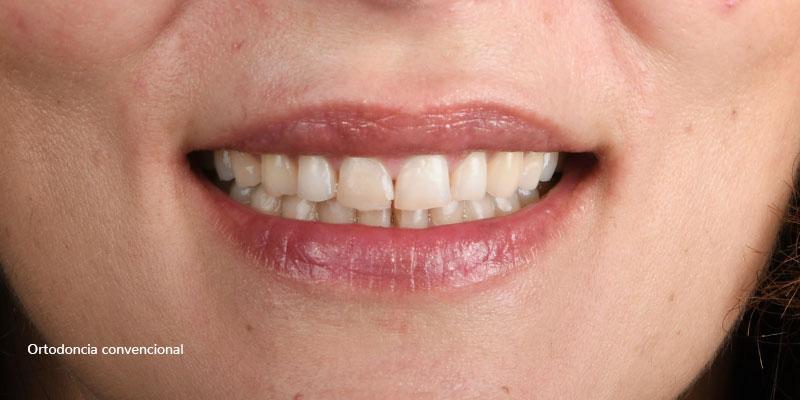 800-400despues-ortodonciaConvencional-91