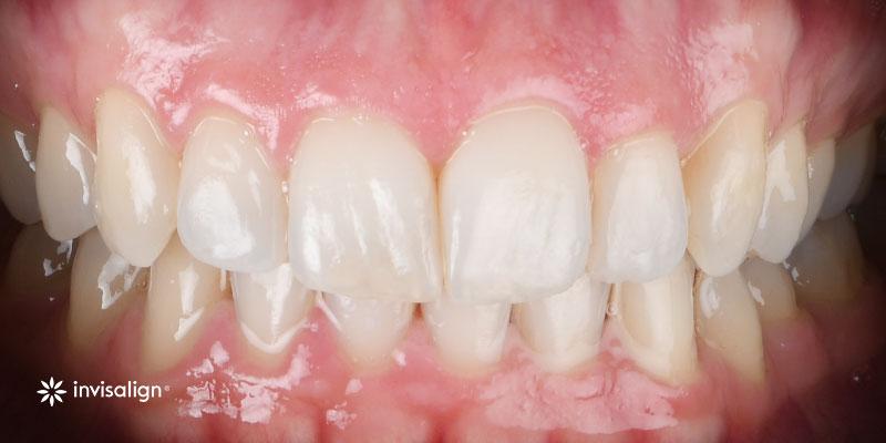 800-400despues-ortodonciaInvisalign-202