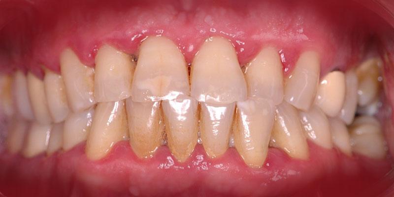 800-400periodontal-antes-caso158