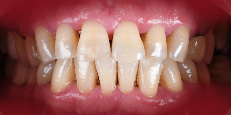 800-400periodontal-despues-caso158