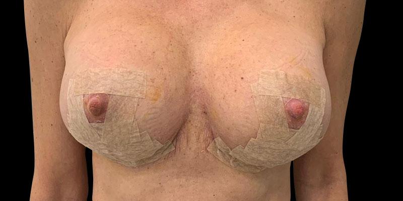 antes-mastopexia-caso2